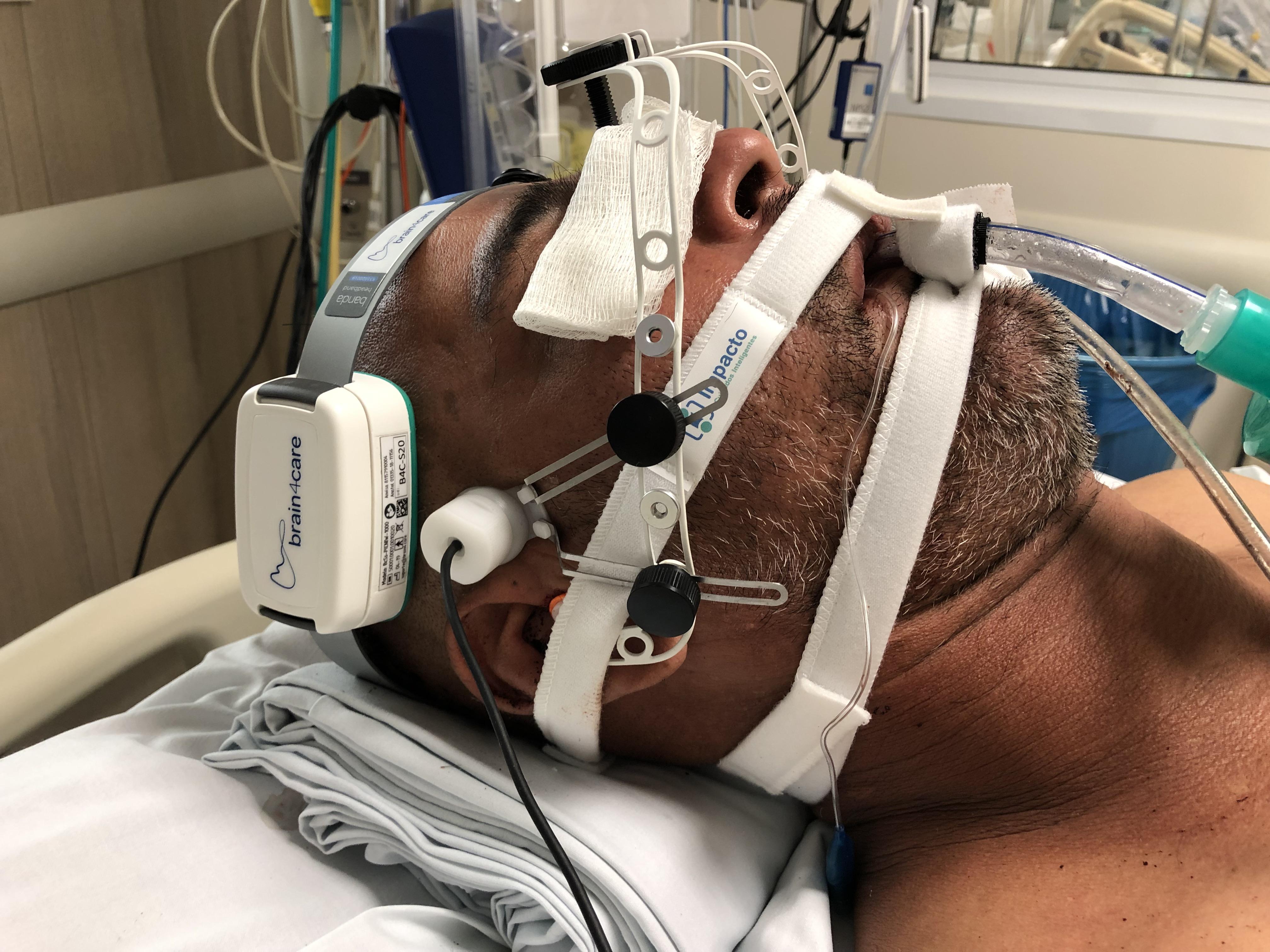 Tecnologia permite monitorar em tempo real as alterações cerebrais em pacientes graves com Covid-19